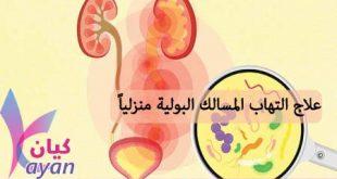 علاجات منزلية لالتهاب المسالك البولية