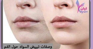 تبييض سواد حول الفم