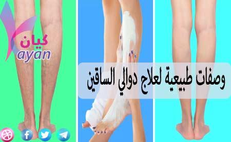 علاج-دوالي-الساقين