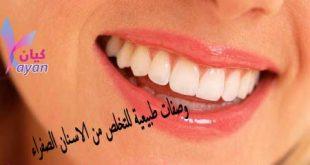 تبييض الاسنان - تخلص من اصفرار الاسنان