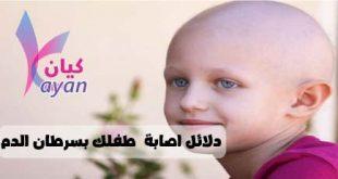 سرطان الدم عند الاطفال