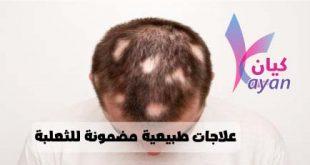علاج الثعلبة