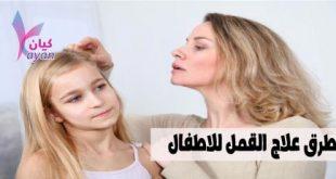 علاج القمل للاطفال